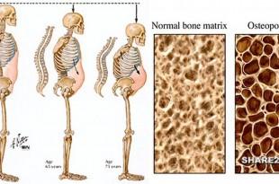 Τα Αναψυκτικά Αυτά Προκαλούν Οστεοπόρωση και Βλάπτουν Κάθε Ζωτικό Όργανο που Βρίσκεται στο Δρόμο Τους