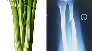 Τρόφιμα που μοιάζουν με μέρη του σώματος -Σέλινο και Οστά