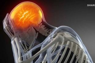 5 Συστατικά Που Βρίσκονται Σε Βασικές Τροφές και Καταστρέφουν τον Εγκέφαλό Μας