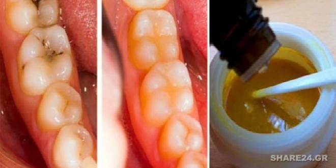 Αντιμετωπίστε τις Οδοντικές Φθορές και Κάντε Λεύκανση στα Δόντια Σας Με Αυτή την Καταπληκτική Μάσκα