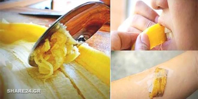 Μην Πετάτε τις Φλούδες της Μπανάνας 6 Οφέλη Για την Υγεία Σας Που Δεν Είχατε φανταστεί