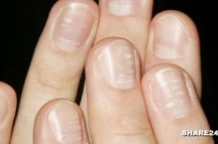 Τι Δείχνουν τα Λευκά Σημάδια στα Νύχια για την Υγεία Μας
