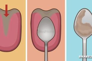 Κάντε το Τεστ με το Κουτάλι στη Γλώσσα Σας και Μάθετε τι έχει να Σας Πει για την Υγεία Σας