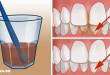 Αφαιρέστε την Πέτρα, Καθαρίστε την Πλάκα & Αντιμετωπίστε τα Βακτήρια του Στόματος με Αυτά τα Φυσικά Συστατικά