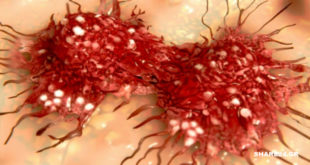 Οι Επιστήμονες Απέδειξαν ότι η Εμπάθεια Σχετίζεται Άμεσα με την Εμφάνιση Καρκίνου