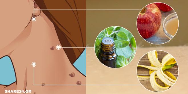 Κρεατοελιές! 12 Τρόποι για να Απαλλαγείτε από Αυτά τα Καλοήθη Θηλώματα (Ακροχορδώνες) του Δέρματος.