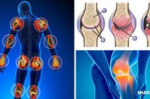 11 Λάθη που Προκαλούν Πόνο στις Αρθρώσεις και Πρέπει να τα Αποφύγουμε!