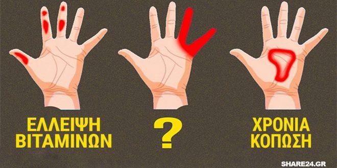 Τα Χέρια μπορούν να Προειδοποιήσουν για αυτά τα 7 Συμπτώματα Υγείας! Κόπωση, Ανεπάρκεια Βιταμινών και Διαβήτης